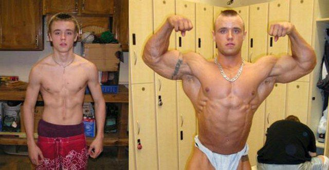 Young bodybuilder: before and after steroids